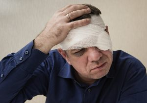 The Effects Of Head Injuries In Automobile Accidents