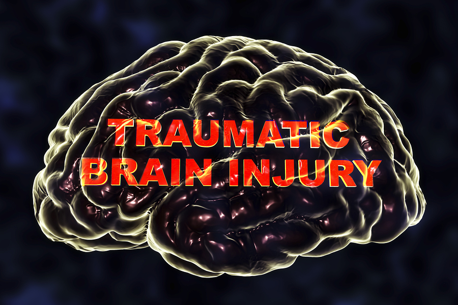 How Do You Know When You Have A Traumatic Brain Injury?